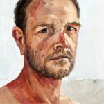Andrew Sayers Self-portrait with sun damage, 2014
